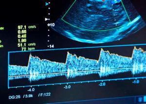 УЗИ сосудов: вен, артерий (сонография)